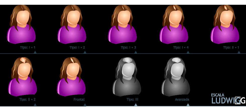Patron de alopecia femenina
