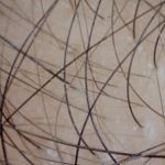 alopecia trasplante capilar