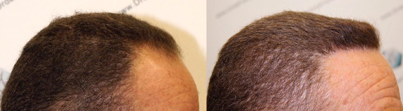 tc 2 Caso clínico real de paciente de trasplante capilar FUE con alopecia tipo IV - V