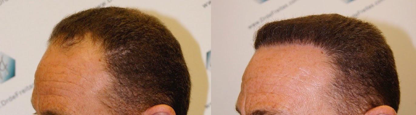tc 3 Caso clínico real de paciente de trasplante capilar FUE con alopecia tipo IV - V