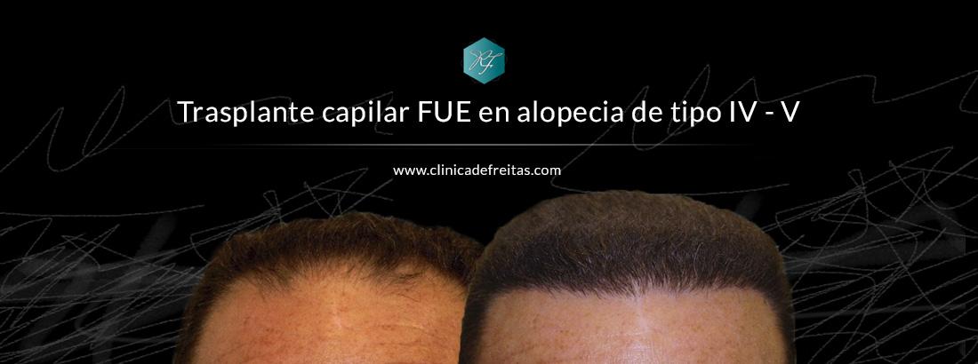 Caso clínico real de paciente de trasplante capilar FUE con alopecia tipo IV – V