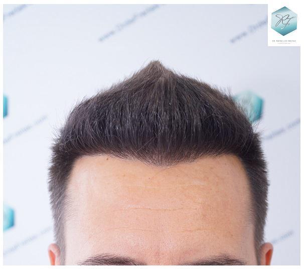 Trasplante capilar NWIV  2.762 Grafts (6.703 cabellos)