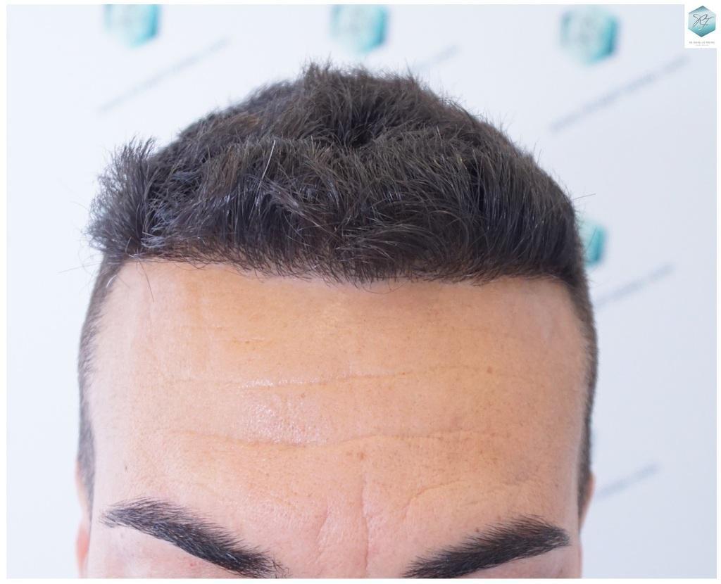 injerto pelo en españa