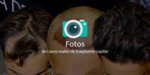 fotos de trasplantes capilares