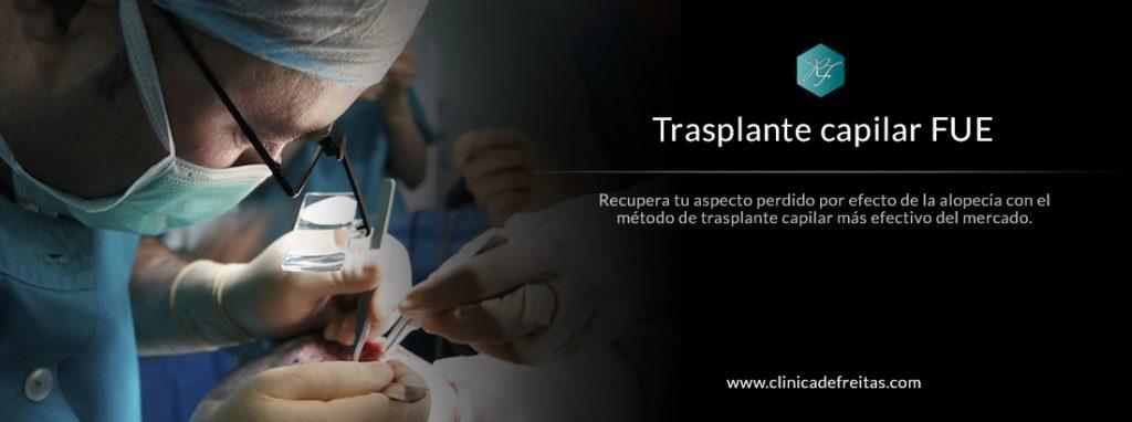 tratamiento capilar trasplante capilar fue