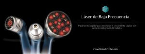 tratamiento anticaida laser de baja frecuencia en valencia
