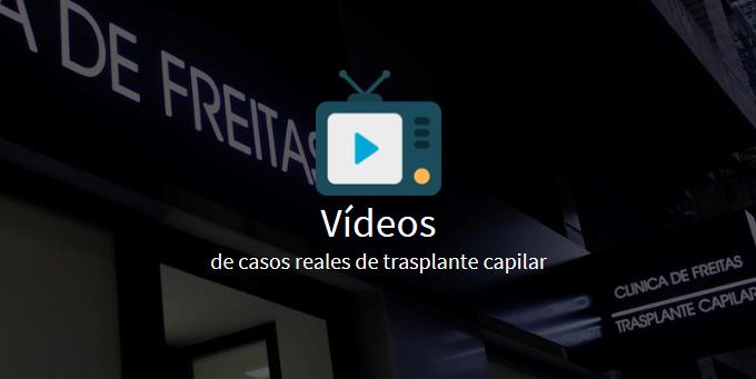 videos de trasplantes capilares