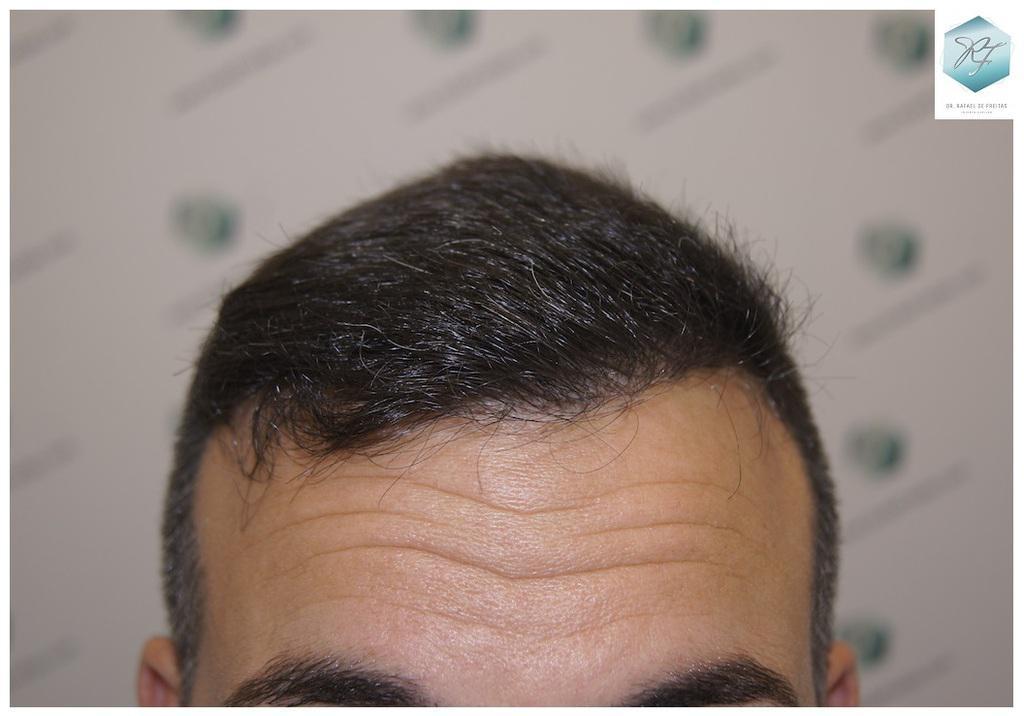 Trasplante capilar NWIII-IV 2.911 Grafts (7.057 cabellos)