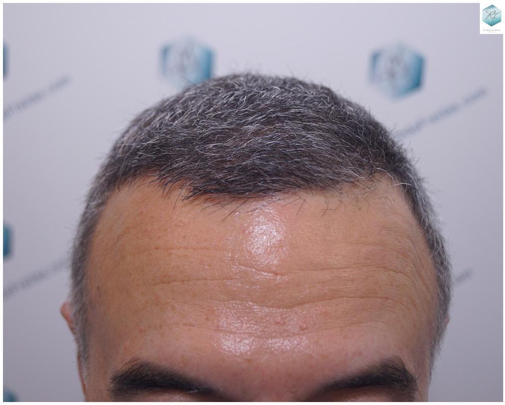 resultados reales transplante de pelo