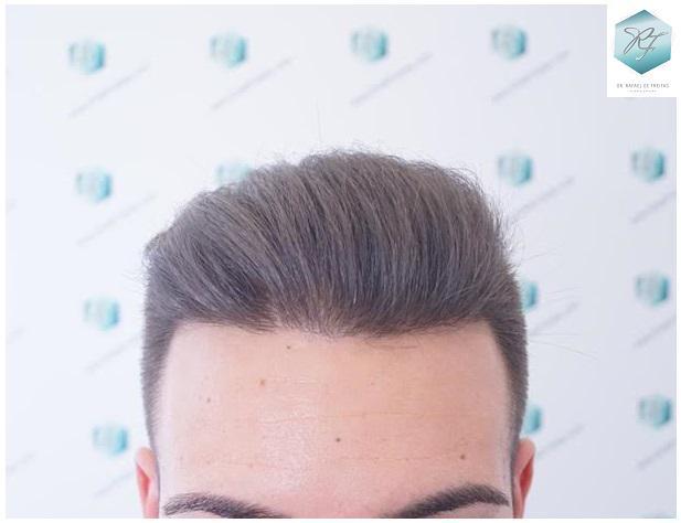 Trasplante alopecia difusa NWIV 5412 UFS ( 13824 pelos )