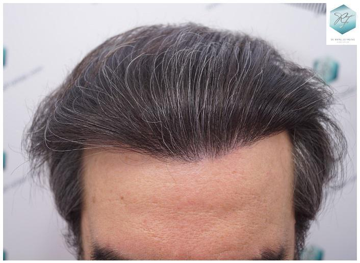 Trasplante capilar NWIII 3302 grafts (7.603 pelos)