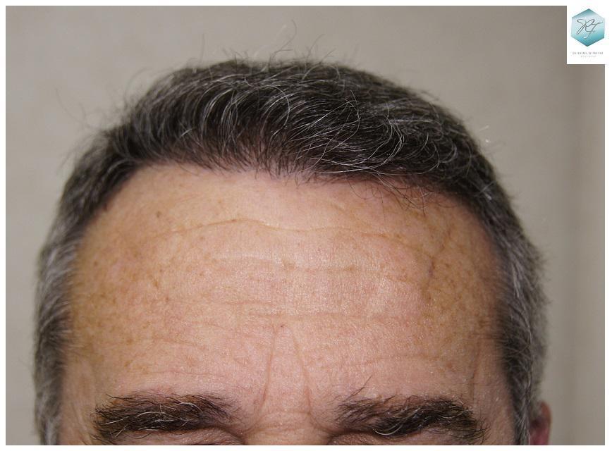 Trasplante capilar NWIV 2911 unidades foliculares (6191 cabellos)