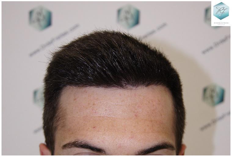 Trasplante capilar NWII 1827 UF (4048 cabellos)