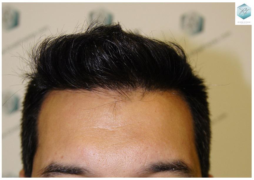 Trasplante capilar NWV 3217 UF (7890 cabellos)