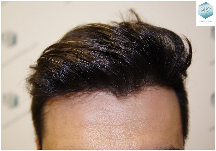 Trasplante capilar NWII 1870 UF (4013 cabellos)