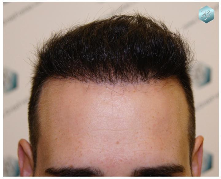 Trasplante capilar NWV 2553 grafts (5294 pelos)