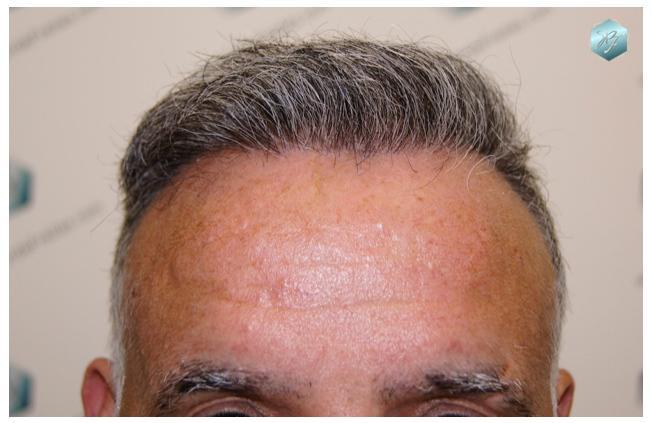 Trasplante capilar NWV 3538 grafts (8139 pelos)