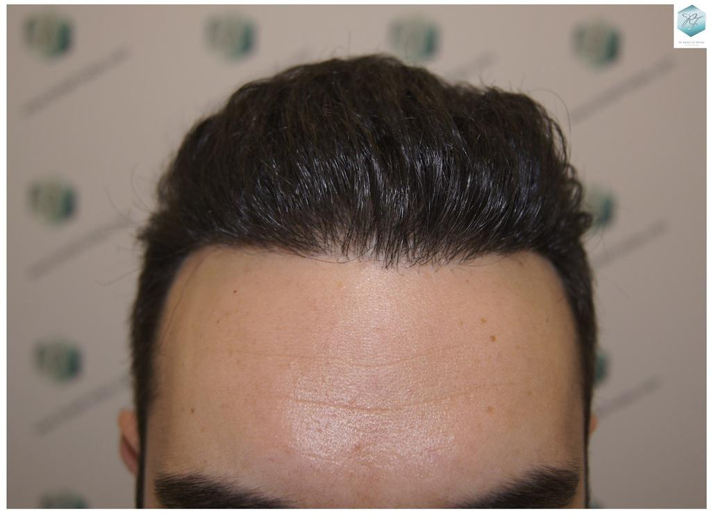 Trasplante capilar NWIII 3681 grafts (8585 pelos)
