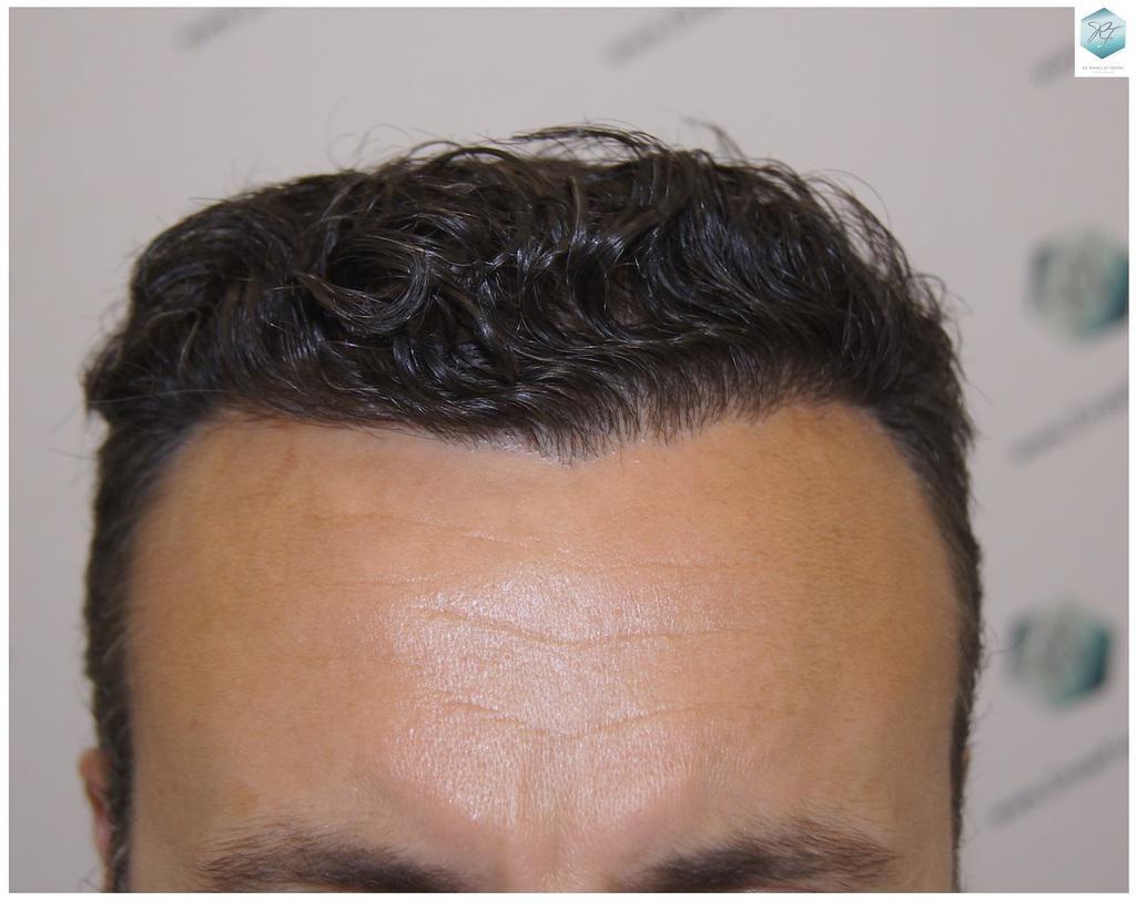 Trasplante capilar NWIII 3183 grafts (7688 pelos)