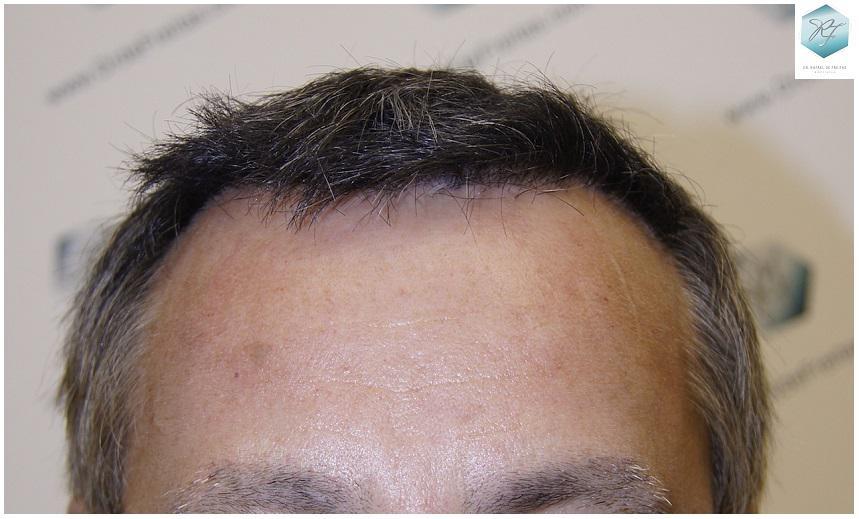 Trasplante capilar NWIV 2569 grafts (5054 pelos)