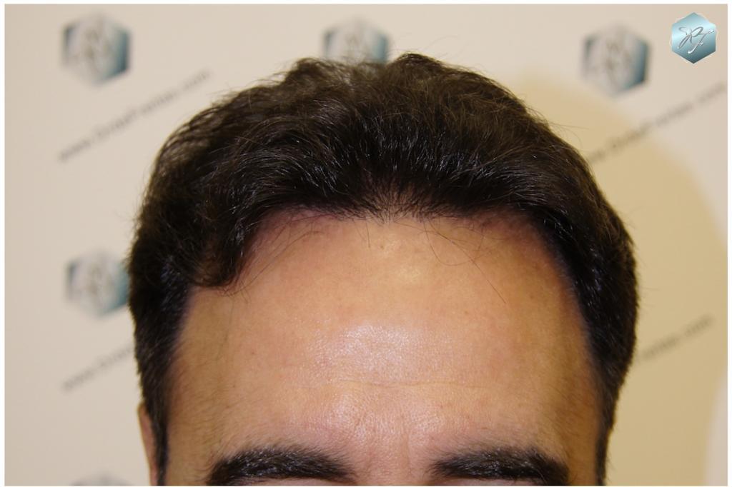 Trasplante capilar NWV 3333 grafts (8318 pelos)