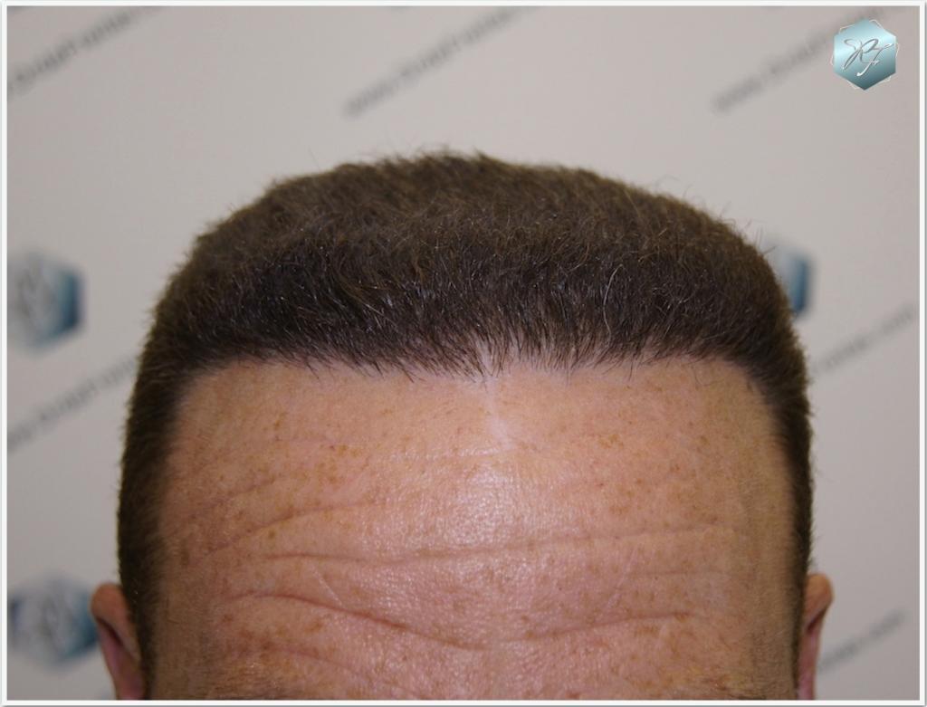Trasplante capilar NWIV-V 2572 grafts (6149 pelos)