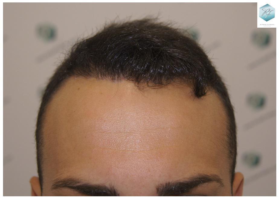Trasplante capilar NWIII-IV 3018 grafts (6498 pelos)