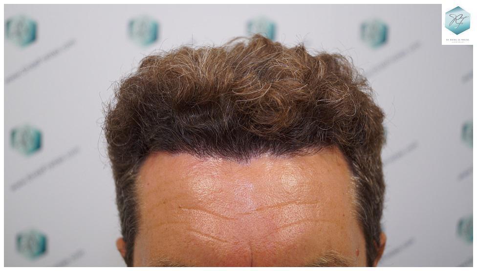 recuperar el pelo coronilla