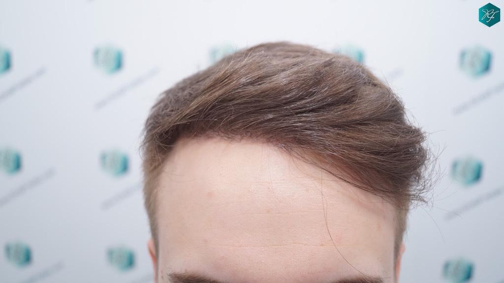 evolución trasplante de pelo