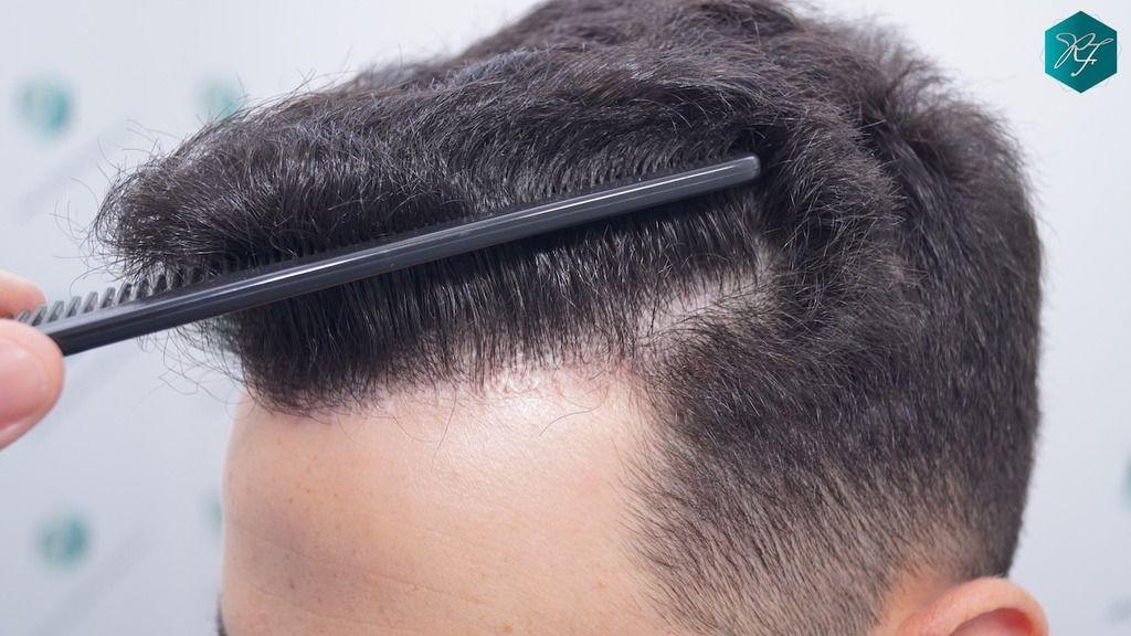 Implante de pelo en España
