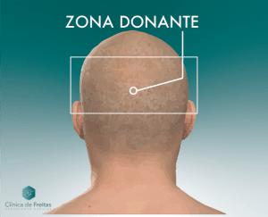 ZONA DONANTE Y RECEPTORA DE INJERTO