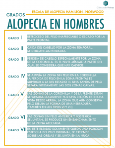 GRADOS ALOPECIA HOMBRE