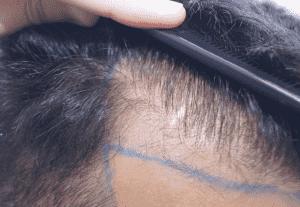 Planteamiento inicial para trasplante capilar en cicatrices