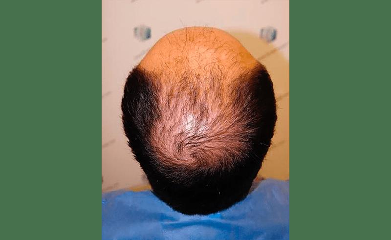 alopecia difusa DUPA
