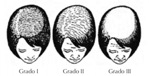 clasificacion de alopecia