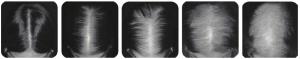 clasificacion de alopecia escala ludwig